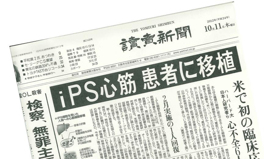 iPS cell transplant headline