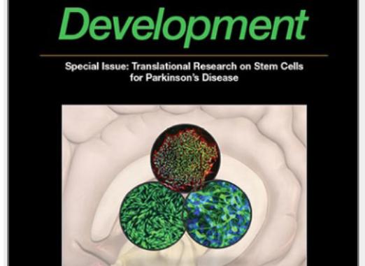 stem cells and development parkinson's disease